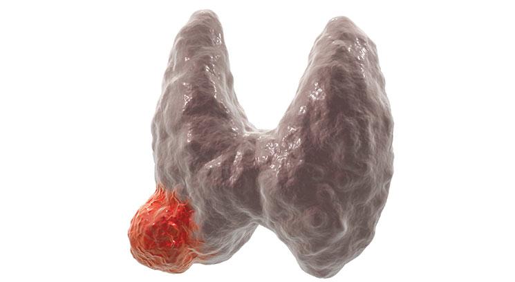 karcinom štitaste žlezde