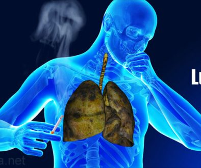 causes-of-lung-cancer-smoking